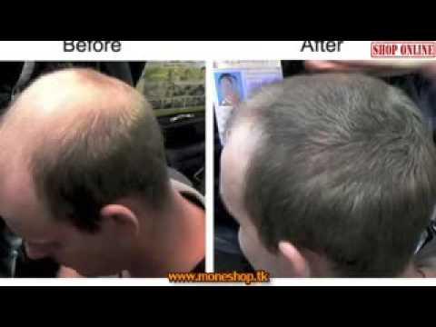✔Смотреть 15 Инструкция Прически Для Мужчин С Густыми Волосами — Густые Волосы У Мужчин Прически